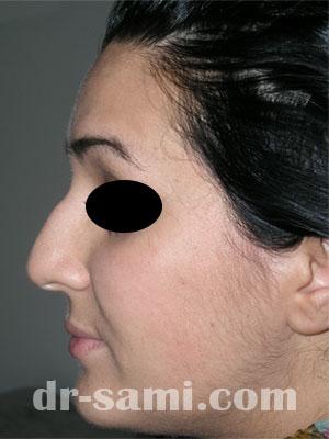 نمونه نمونه کارهای جراحی بینی کد 11