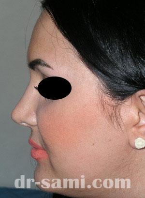 نمونه نمونه کارهای جراحی بینی کد 12