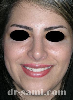 نمونه جراحی زیبایی بینی کد 2
