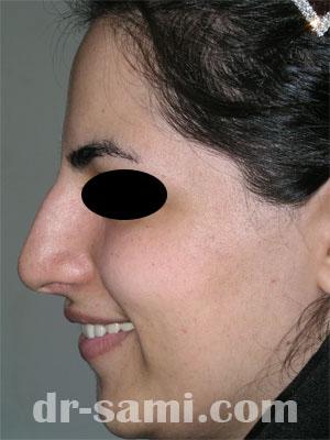 نمونه جراحی زیبایی بینی کد 3