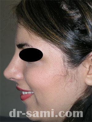 نمونه جراحی زیبایی بینی کد 4