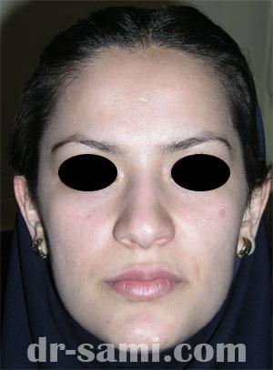 نمونه نمونه کارهای جراحی بینی کد 13