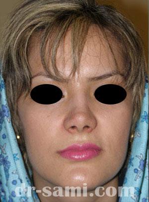 نمونه جراحی زیبایی بینی کد 14