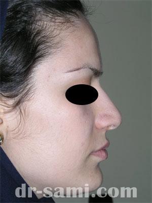نمونه نمونه کارهای جراحی بینی کد 15