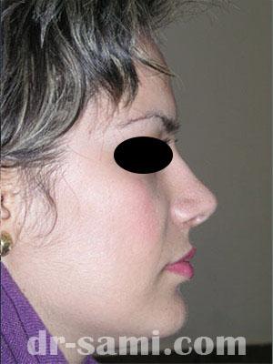 نمونه نمونه کارهای جراحی بینی کد 16