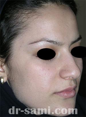 نمونه نمونه کارهای جراحی بینی کد 17