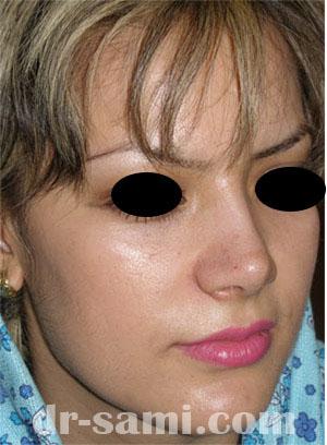 نمونه نمونه کارهای جراحی بینی کد 18
