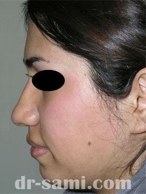 نمونه نمونه کار جراحی چانه کد 22