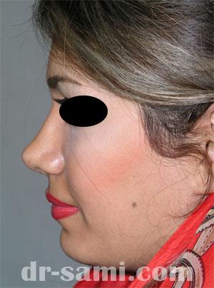 نمونه جراحی زیبایی چانه کد 23