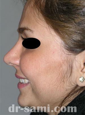 نمونه جراحی زیبایی بینی کد 27