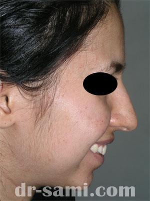 نمونه جراحی زیبایی چانه کد 28