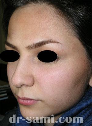 نمونه نمونه کارهای جراحی بینی کد 29