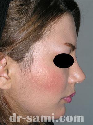 نمونه نمونه کار جراحی چانه کد 31