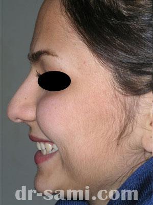 نمونه جراحی زیبایی بینی کد 31