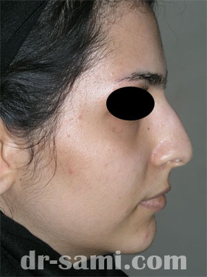 نمونه نمونه کارهای جراحی بینی کد 33