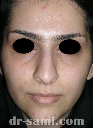 نمونه نمونه کار جراحی بینی کد 34