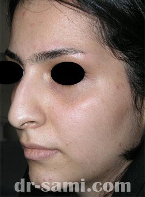 نمونه جراحی زیبایی بینی کد 36