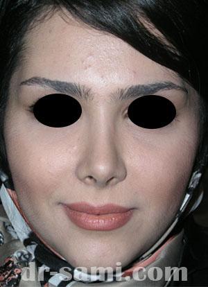 نمونه نمونه کار جراحی بینی کد 37