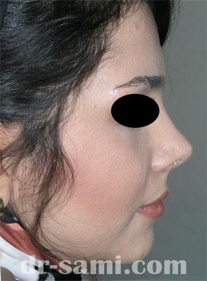 نمونه جراحی زیبایی بینی کد 39