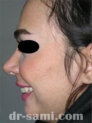 نمونه نمونه کار جراحی چانه کد 41