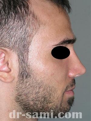 نمونه نمونه کارهای جراحی بینی کد 43