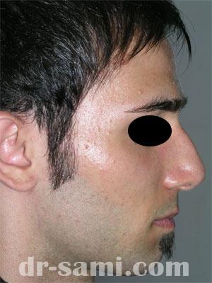 نمونه نمونه کارهای جراحی بینی کد 46