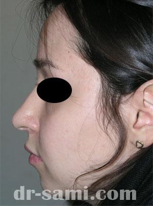 نمونه نمونه کارهای جراحی بینی کد 47