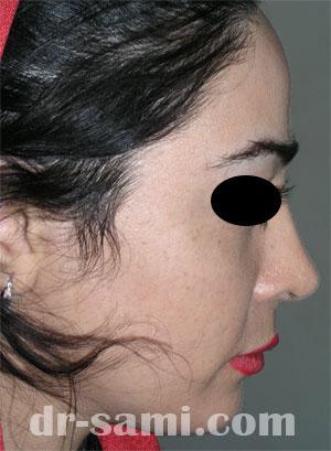 نمونه جراحی زیبایی چانه کد 49