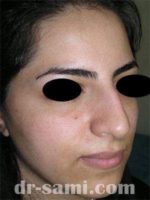 نمونه نمونه کارهای جراحی بینی کد 5