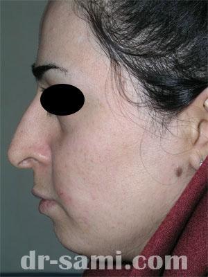 نمونه جراحی زیبایی چانه کد 50