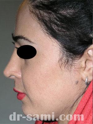 نمونه جراحی زیبایی چانه کد 51