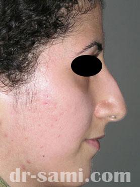 نمونه جراحی زیبایی بینی کد 55