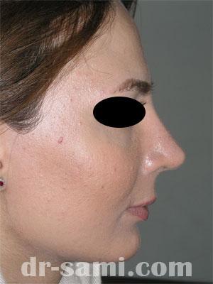 نمونه نمونه کار جراحی چانه کد 58