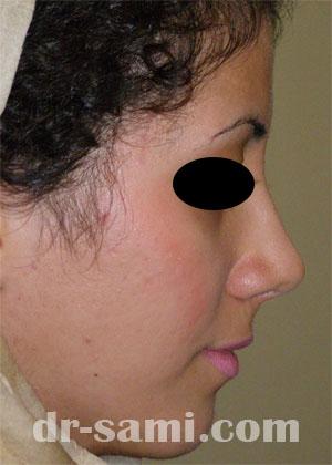 نمونه نمونه کارهای جراحی بینی کد 59