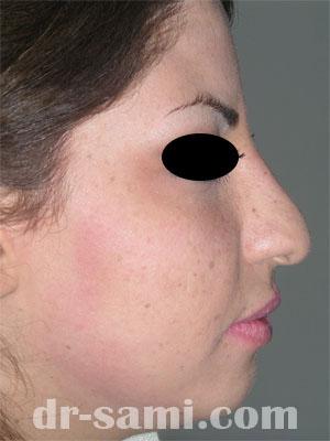 نمونه جراحی زیبایی چانه کد 60
