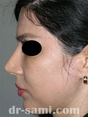 نمونه جراحی زیبایی چانه کد 65