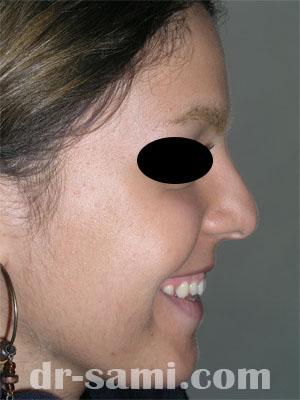 نمونه نمونه کارهای جراحی بینی کد 65