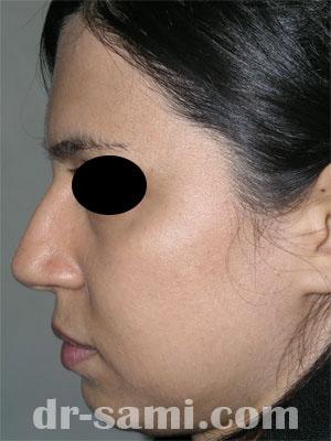 نمونه جراحی زیبایی چانه کد 66