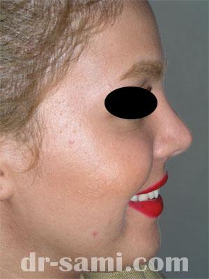 نمونه نمونه کارهای جراحی بینی کد 67