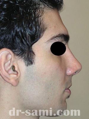 نمونه نمونه کارهای جراحی بینی کد m10
