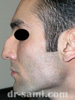 نمونه نمونه کارهای جراحی بینی کد m11