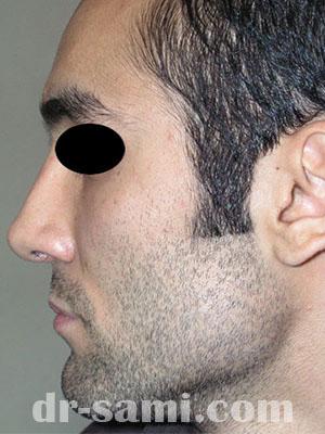 نمونه جراحی زیبایی بینی کد m12