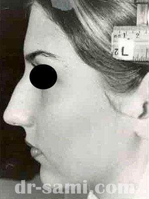 نمونه نمونه کارهای جراحی بینی کد m13