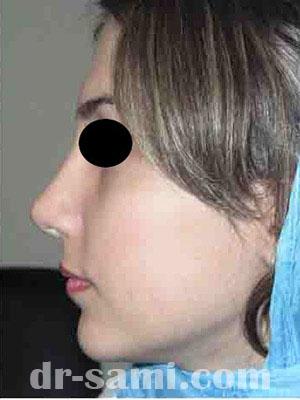 نمونه نمونه کارهای جراحی بینی کد m14