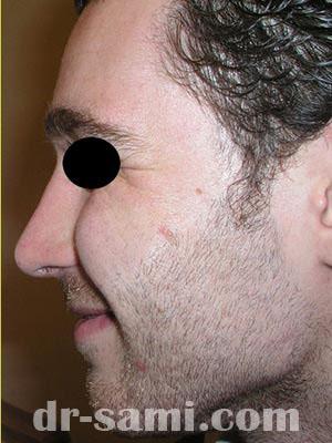 نمونه نمونه کارهای جراحی بینی کد m2