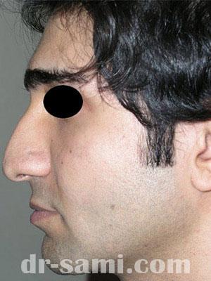 نمونه جراحی زیبایی بینی کد m27