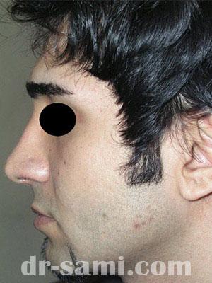نمونه جراحی زیبایی بینی کد m28