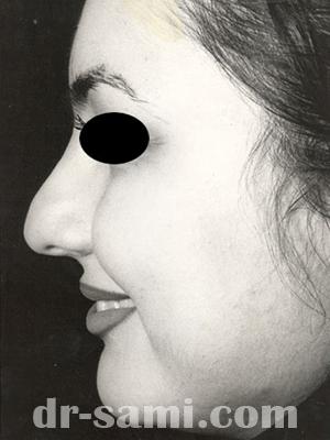نمونه جراحی زیبایی بینی کد m31
