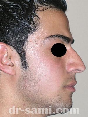 نمونه نمونه کارهای جراحی بینی کد m39