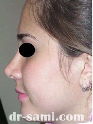 نمونه جراحی زیبایی بینی کد m4